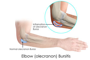 Резултат с изображение за bursitis elbow 3D