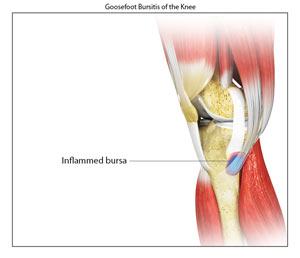 Goosefoot bursitis sacramento kneecap bursitis walnut creek ca goosefoot bursitis of the knee ccuart