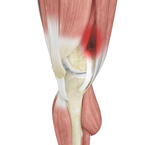 liotibial Band Syndrome