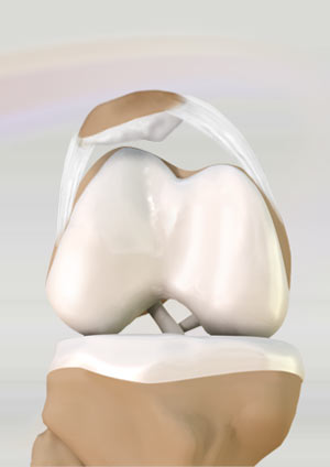 Lateral Patellar Compression Syndrome