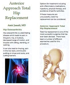 anterior approach total hip replacement in Pdf format