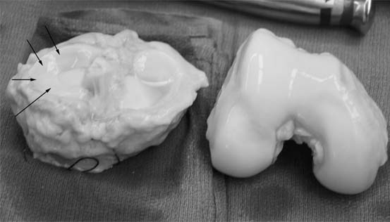 fresh-osteochondral-allografting